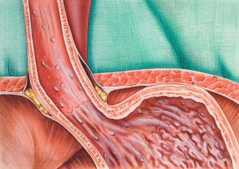 Gastroesophageal Reflux Disease Natural Treatments