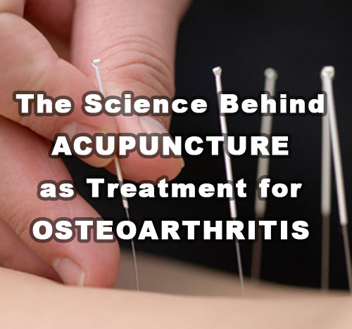 The Science Behind Acupuncture As Treatment For Osteoarthritis