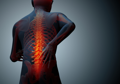 Ankylosing Spondylitis Natural Treatments