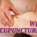 Why Acupuncture?