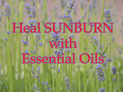 Heal Sunburn with Essential Oils