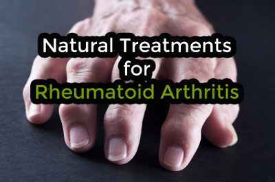 Rheumatoid Arthritis Natural Treatments