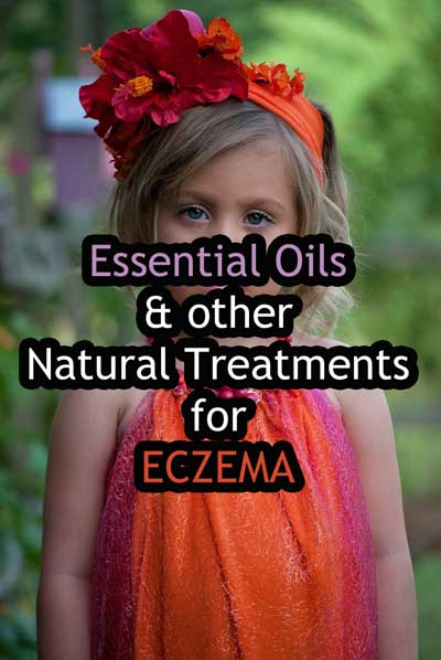 Essential Oils & other Natural Treatments for Eczema post image